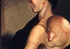 Portrait of a man with a large tumor